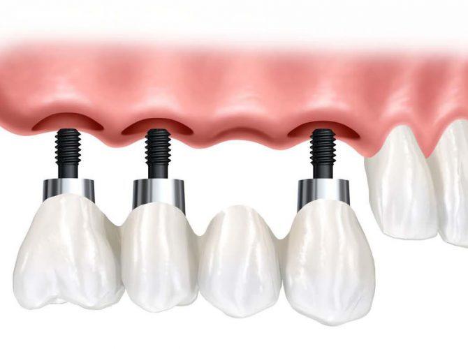 dental-implant-supported-bridge