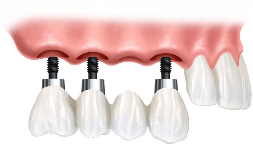 dental-implant-supported-bridge